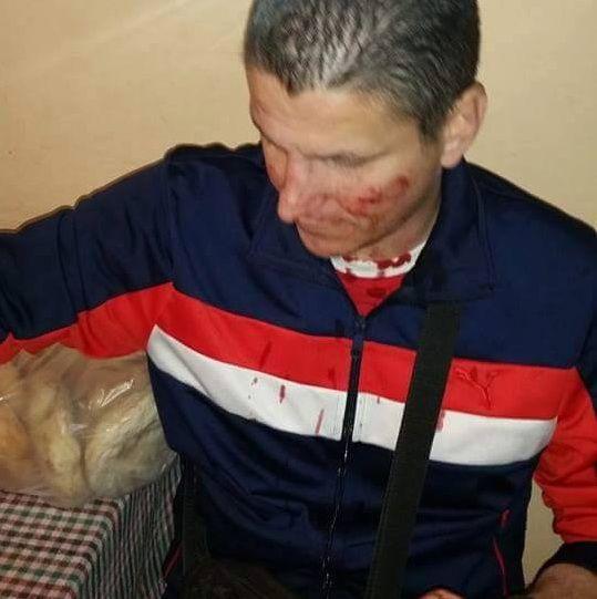 Navijači iz Vranja povređeni u Skoplju