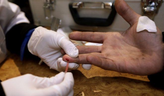 Besplato testiranje na HIV u centru Leskovca
