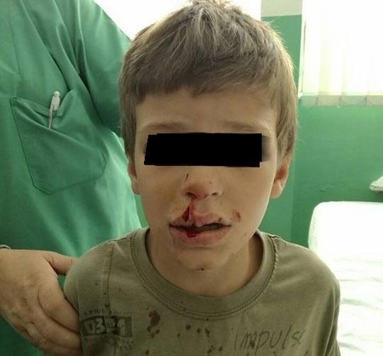 Sedmogodišnjem dečaku pas lutalica unakazio lice