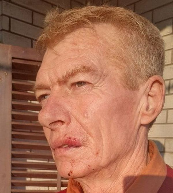 Šef voznog parka čekićem udarao vozača saniteta u Leskovcu