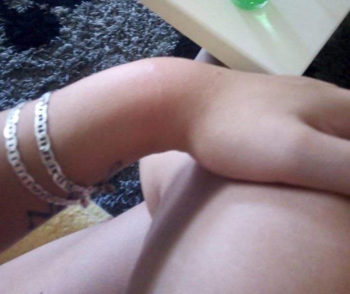 Mladu mamu iz okoline Leskovca ujeo smuk dok je spavala sa bebom u spavaćoj sobi